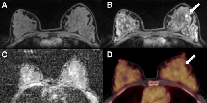 MR images with different enchanchements are shows of a 5--year-old woman with fibroadema in the left breast