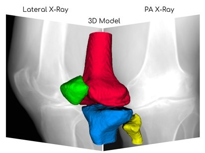 3D reconstruction of knee joint from x-ray images. Image courtesy of RSIP Vision.