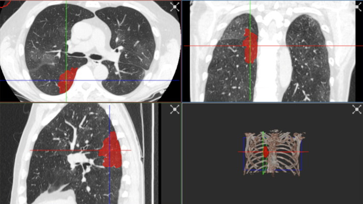 Images showing the RVAI platform from Robovisionm which displays images of the lung with the margins of the opacities in the lung automatically identified