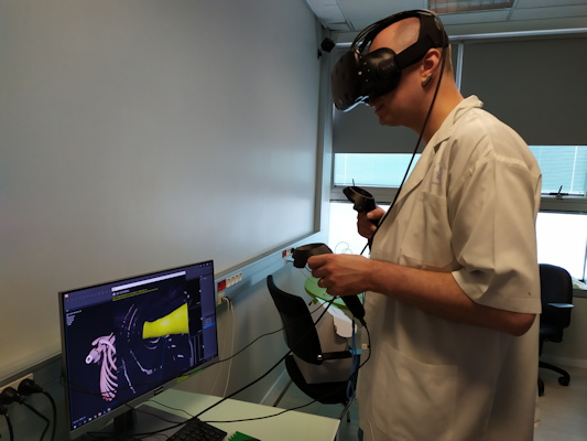 A virtual bronchoscopy enabled better understanding of the patient