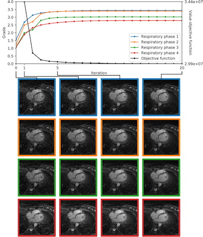 examples of automated image quality assessment by IQ-DCNN during iterative compressed sensing reconstruction