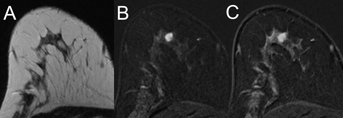 MRI of a 47-year old high-risk patient shows a rather circumscribed mass lesion with heterogeneous internal enhancement and washout, corresponding to a Kaiser score of 8. Histology revealed a luminal-type invasive lobular cancer, B5b
