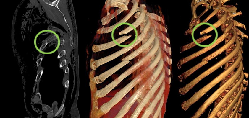 Rib fractures with substantial dislocation of the third rib