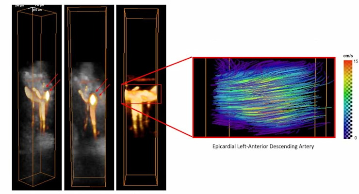 On the left, images of 3D power-Doppler volumes overlaid on anatomical volumes of the myocardium in the left-anterior descending artery. On the right, images of absolute flow velocities estimated by 4D ultrafast ultrasound flow imaging.