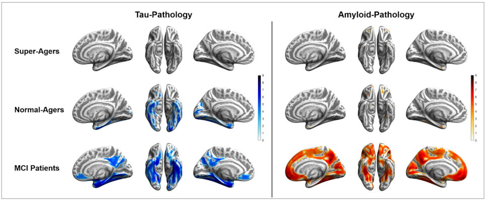 Tau and amyloid distribution patterns for super-agers, normal-agers, and MCI patients, who were compared to a group of younger, healthy, cognitively normal, amyloid-negative individuals