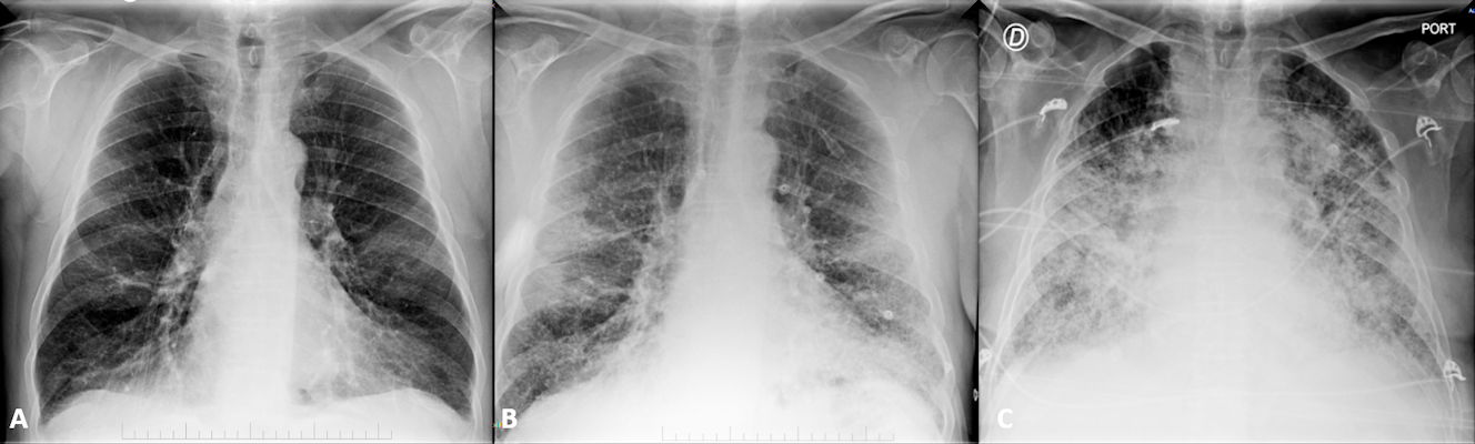 Portable chest x-rays from a 69-year-old male with COVID-19 pneumonia