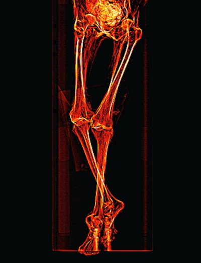 Scout CT scan shows the mummy