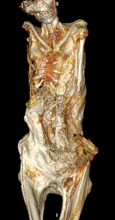 3D CT image of the upper body of the mummy shows the gaping left inguinal evisceration incision