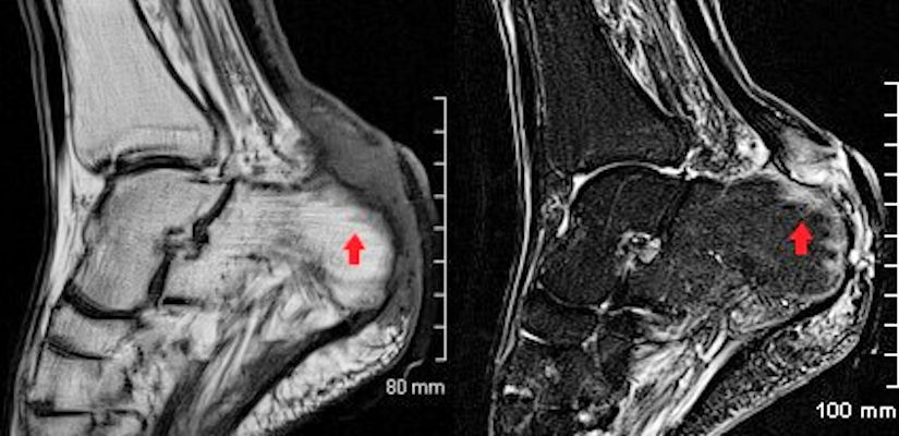 MRI is the imaging investigation of choice in osteomyelitis and other bone and joint infections