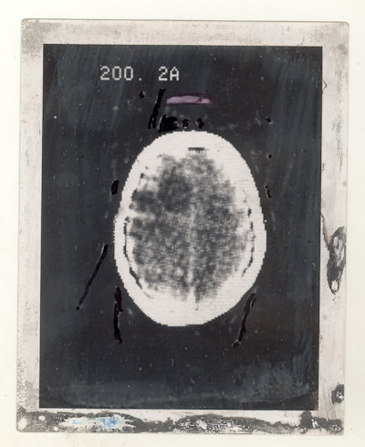 Polaroid image of the first clinical CT scan shows a large cystic lesion in the left frontal lobe