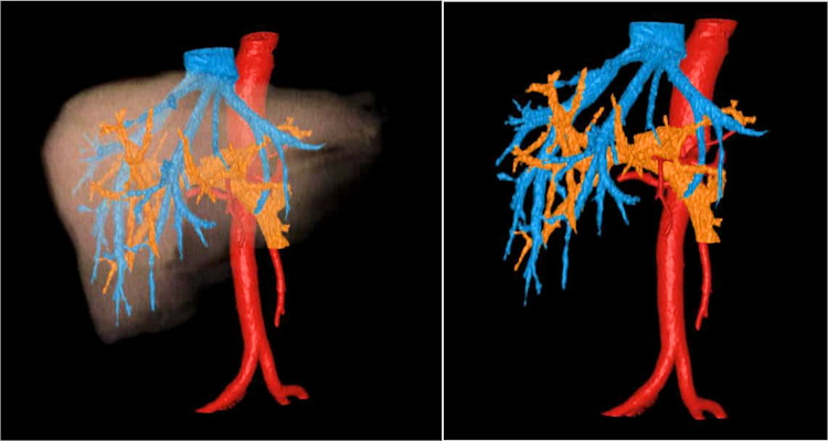 Color-enhanced 3D volume-rendered images of the liver in a patient with hepatic malignancy (left), with isolation of vascular structures (right).