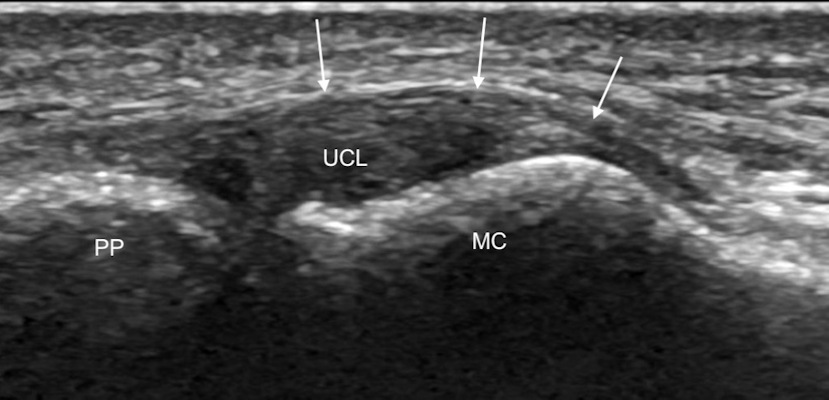 Coronal ultrasound image along the ulnar aspect of the thumb MCP joint shows the normal UCL as a convex echogenic fibrillar band bridging the joint between the metacarpal head and first proximal phalanx