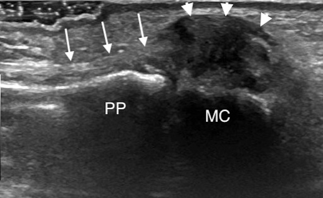 Coronal ultrasound image along the ulnar aspect of the thumb MCP joint demonstrates a displaced UCL tear or Stener lesion