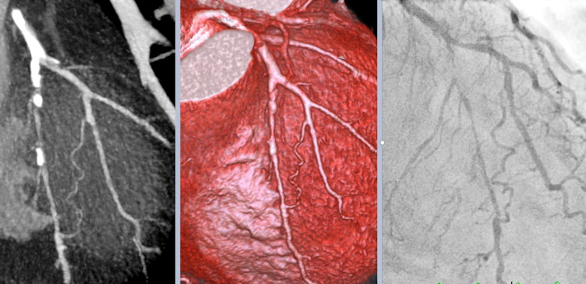 Comparison of the spatial resolution of coronary CT angiography and invasive coronary angiography