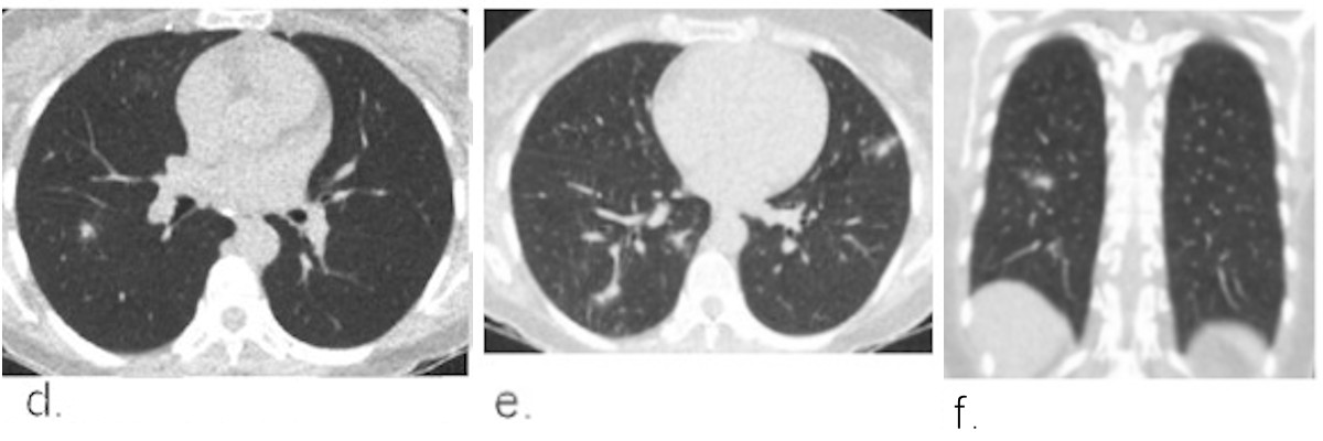 Example chest CT scans of a patient with a false-positive CO-RADS 4 score