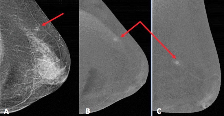 Mammographic images show small enhancing focal asymmetry in upper external quadrant of left breast