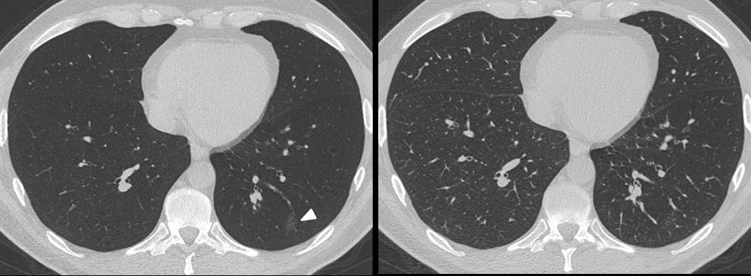 A 37-year-old man presented to the emergency department with cough and fever