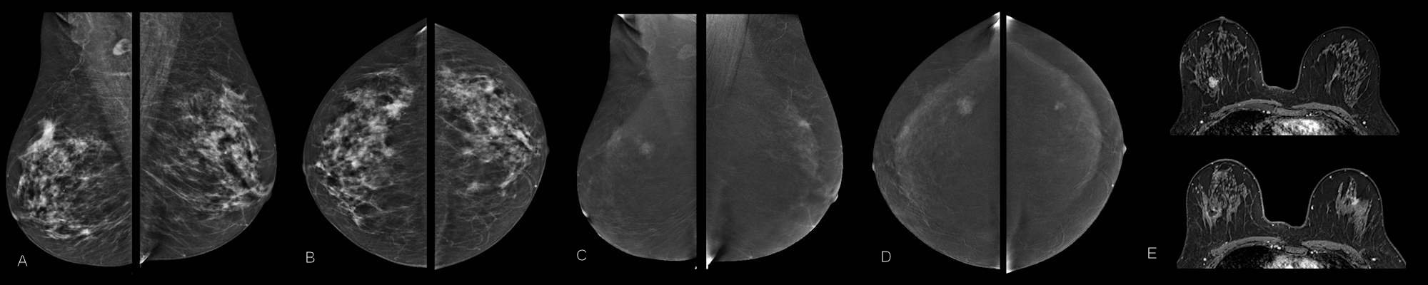 Contrast-enhanced mammography exam of both breasts in two views