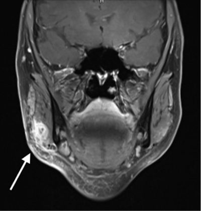 MRI is helping discover lesion led to by way of injection of facial dermal filler, dermalfillerbeforeandafter