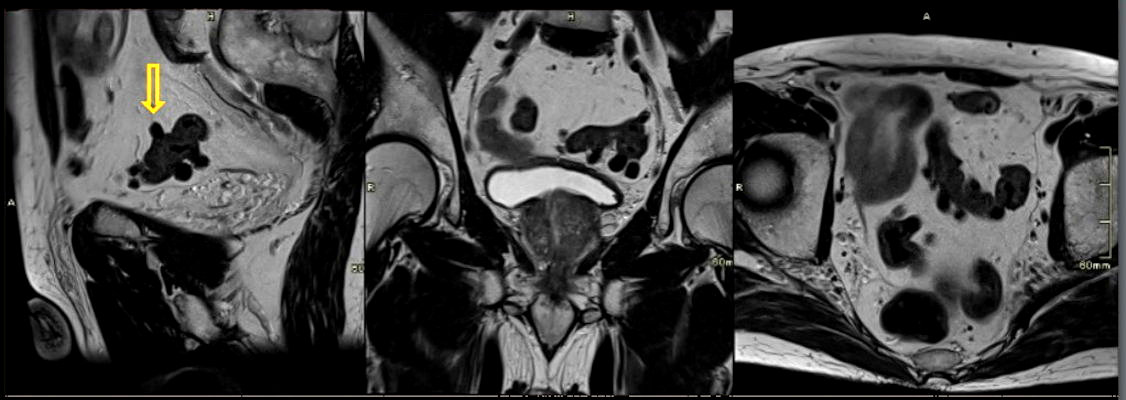 74-year-old man with diverticular disease