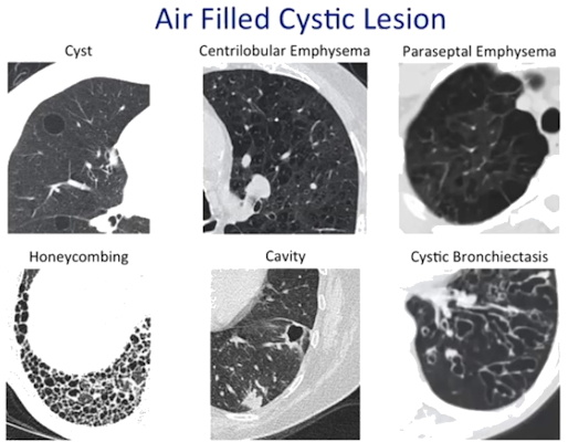 Various entities cause air-filled cystic lesions which need differentiation on CT