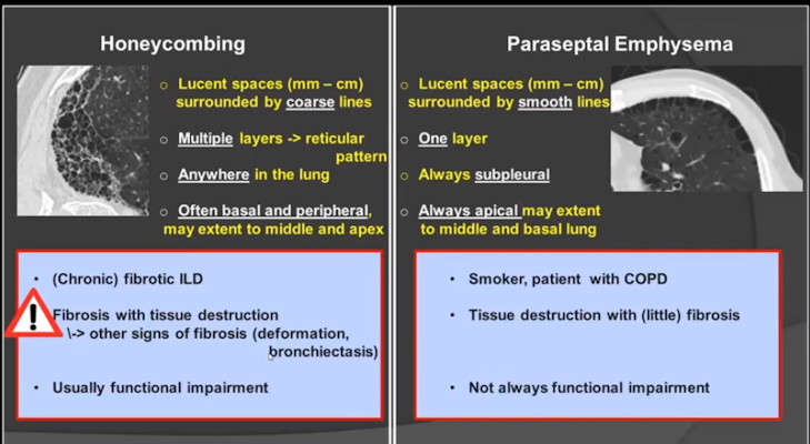 CT signs of honeycombing versus paraseptal emphysema