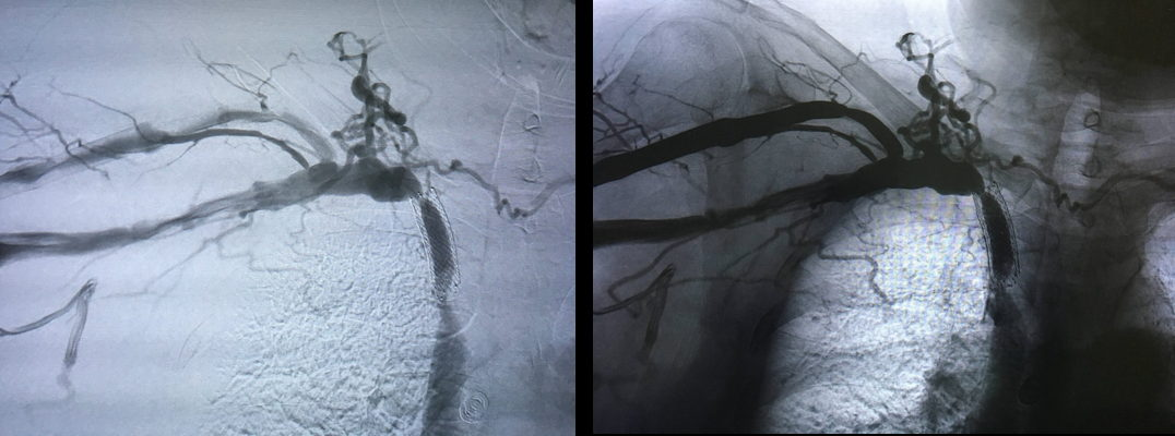 60-year-old male patient with severe stenosis after stent angioplasty of the right brachiocephalic vein