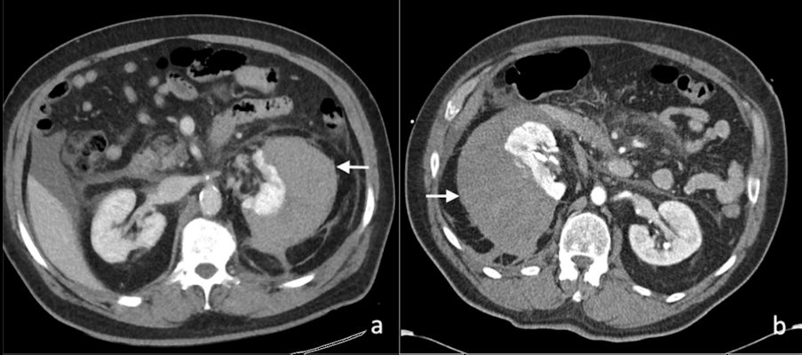 Contrast-enhanced axial CT images of a perinephric hematoma