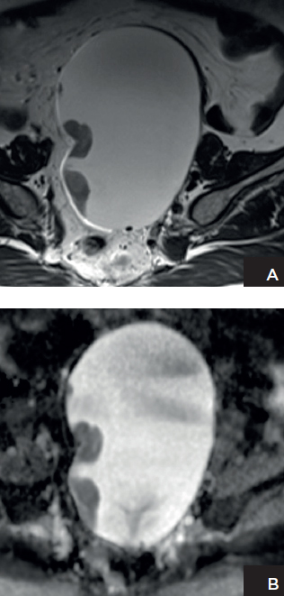 Patient with ovarian cancer: T2-weighted image shows a left adnexal lesion containing solid components, and ADC map shows marked restricted diffusion in the solid components