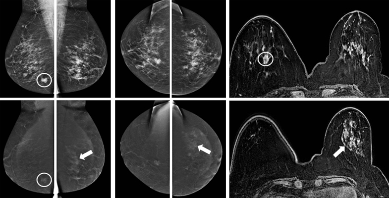 57-year-old woman with an ill-defined irregular mass in the right breast, enhancing on both CESM and MRI