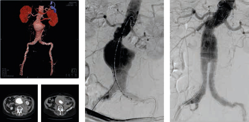 Ruptured abdominal aortic aneurysm before and after stent graft implantation