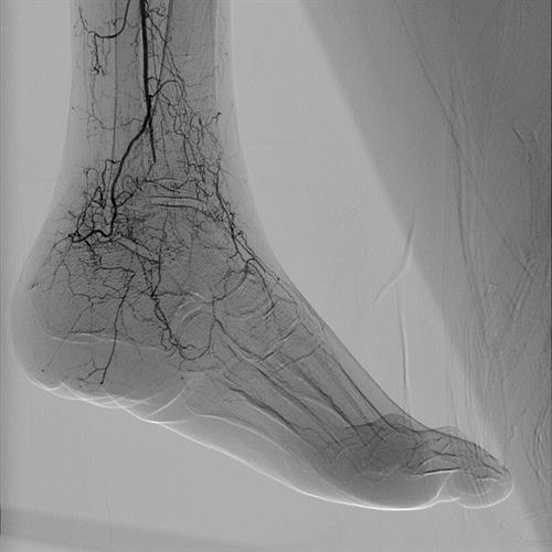 Fine details are visible with the Azurion 7 interventional system
