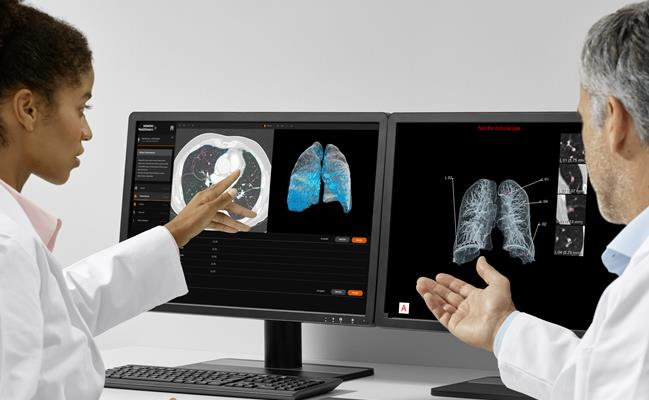 Chest CT scan viewed with the AI-Rad Companion Chest CT software