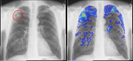 Chest radiograph with and without CAD