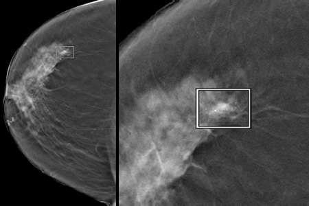 A CAD-detected 12-mm invasive ductal carcinoma with associated microcalcifications
