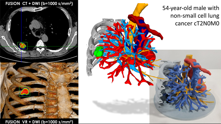 Hybrid 3D printing fuses CT scans and MR images to create 3D models of lungs