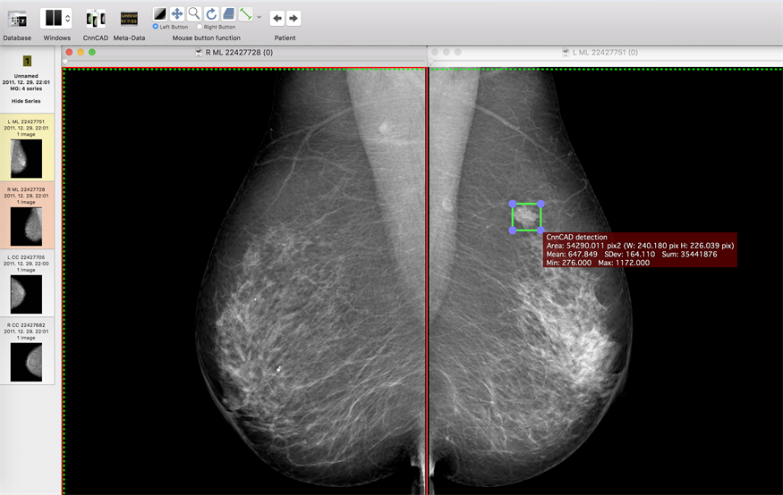 Can Deep Learning Power Mammography Cad To New Heights