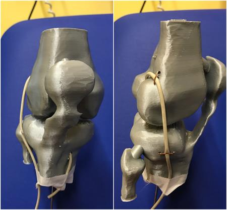 Frontal and lateral views of knee-printed model