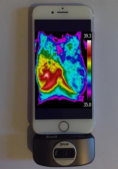 Thermal images recorded on a smartphone