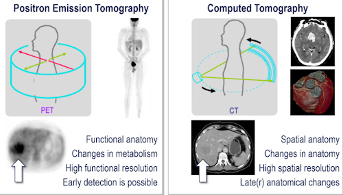 PET/CT has excelled in oncology for whole-body staging
