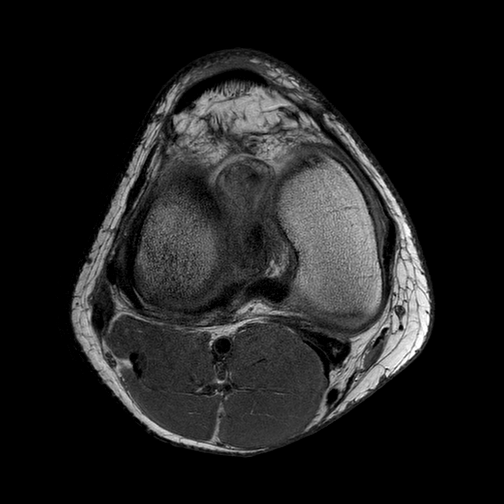 Axial MR image shows ovoid focus of scar tissue in anterior aspect of notch.