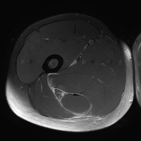 Corresponding axial scan shows absence of the intramuscular tendon as consequence of tendon failure and retraction