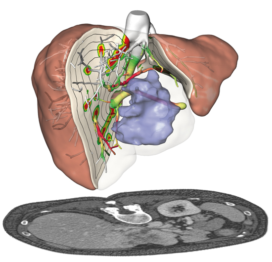 Patient-specific 3D model (top) based on CT scans (bottom) of the liver