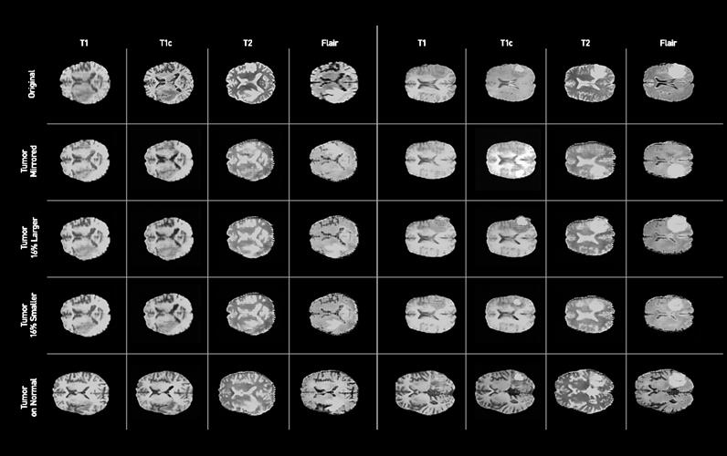 Examples of synthetic brain MR images generated by the GAN