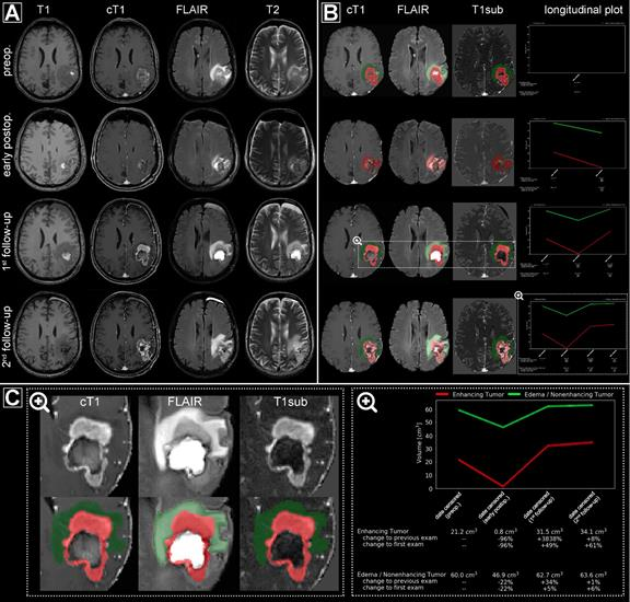 Automated processing of multiple MRI exams (preoperative, early postoperative, first follow-up, and second follow-up) from a representative patient.