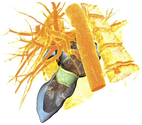 3D heart valve model with corresponding blood flow simulation