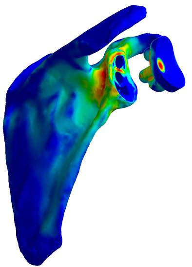 Fit by numbers -- 3D models allow for individually optimized implants. Image courtesy of Dr. Karl Entacher.