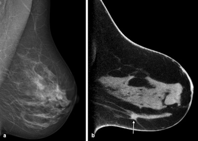 breast tomosynthesis disadvantages Tomosynthesis is a method of breast screening that appears to be more reliable than a regular mammogram it is a type of x-ray that provides a 3-d image of the breasts.