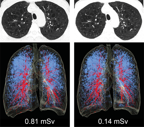CT images of the lung in a 48-year-old woman with emphysema