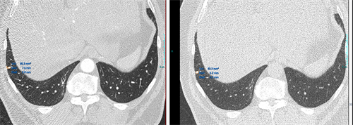 Semiautomatic lung nodule volumetry
